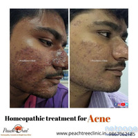 Acne treatment with homeopthy