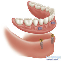 Best Dental Implant Specialist in Delhi