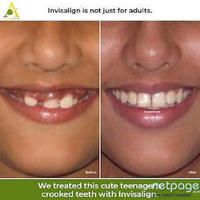 Cosmetic Dental Procedures for Restoring Teeth