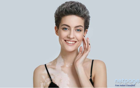 HOW TO SUCCESSFULLY TREAT YOUR VITILIGO?