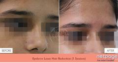 Best Doctor For Laser Hair Removal in Delhi